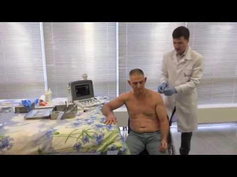 Инъекционное лечение плечевого сустава из переднего доступа