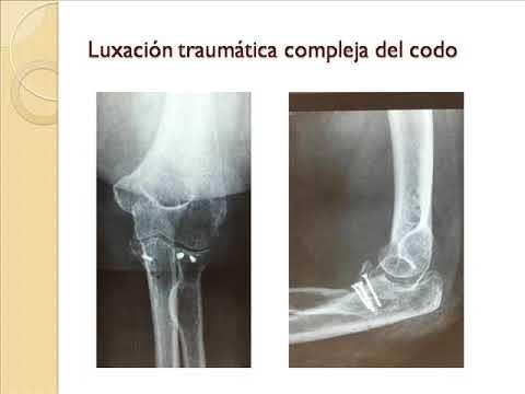 Lo aplasia de las articulaciones de la cadera