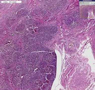 Helminth parasitic disease