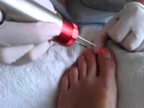 La medicina el hongo de los pie el tratamiento