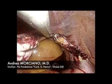 Laparoscopia Single Port: Annessectomia Bilaterale | Single Incision - SILS - LESS