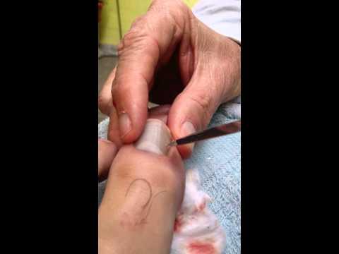 Como curar el magullado del dedo en la uña