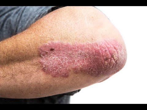 Eczema di malattia di palma