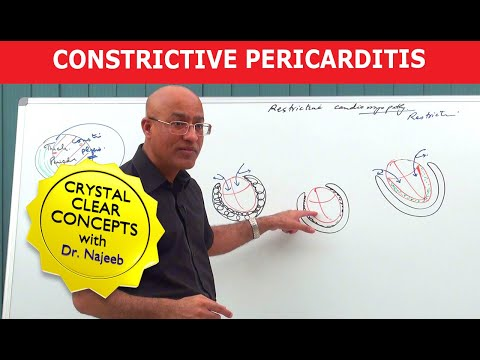 Pericarditis – Causes, Symptoms, Diagnosis, Treatment, Pathology