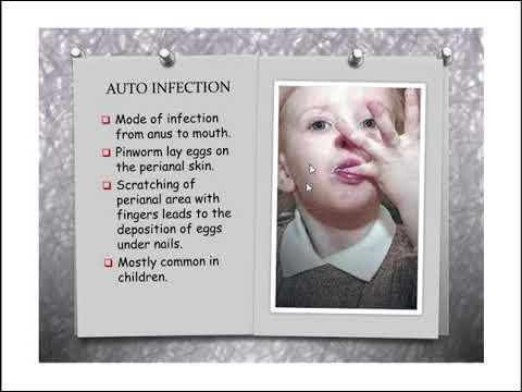 Giardia vacuna zoetis
