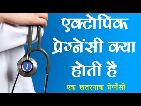Ectopic Pregnancy Explained in Hindi | By Ishan