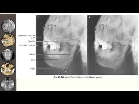 Artroza genunchiului ce trebuie făcut