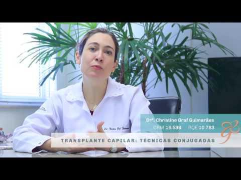 Transplante Capilar com técnicas conjugadas - Vídeos   Clínica GrafGuimarães