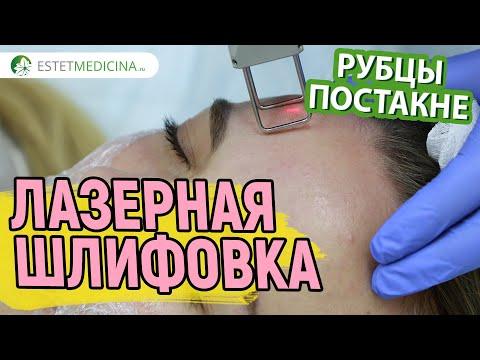 Косметическая чистка лица пилинг