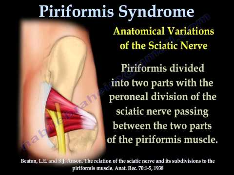 Zmęczenie mięśni podczas statycznej pracy mięśni