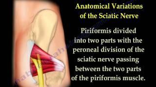 Piriformis Syndrome , sciatica  - Everything You Need To Know - Dr. Nabil Ebraheim
