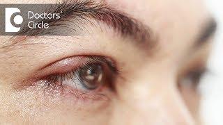 Do swollen, itchy & burning eyes indicates Blepharitis? - Dr. Sunita Rana Agarwal