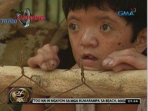 Isang katutubong lunas para halamang-singaw sa kili-kili
