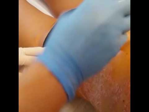 Eczema microbico di capezzoli