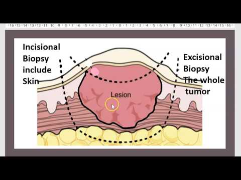 Vestibular papillomatosis laser treatment