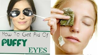 Easy Home Remedies to Cure PUFFY and SWOLLEN EYES
