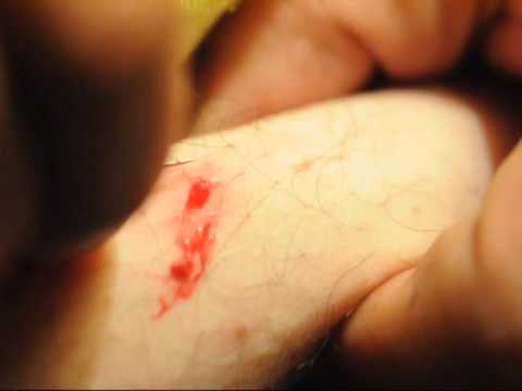 Che trattare un fungo di unghia su risposte di medicina di gamba