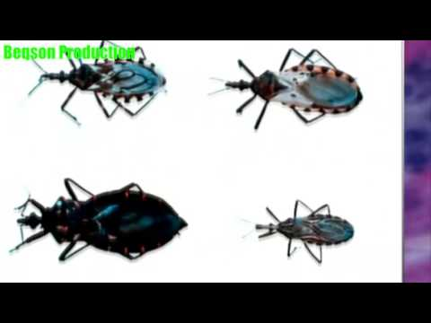 Video Kissing bug disease - What people need to know about Chagas