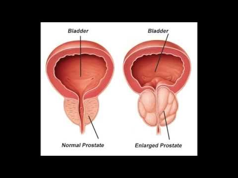 Calculous Prostatitis Behandlung