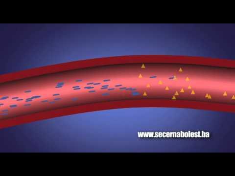 Utrnulost prstiju u dijabetesu