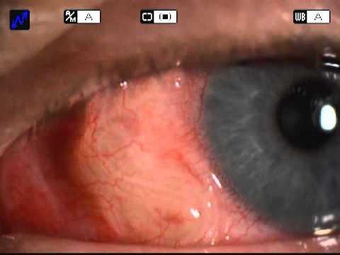 A trichocephalus klinikai vizsgálata