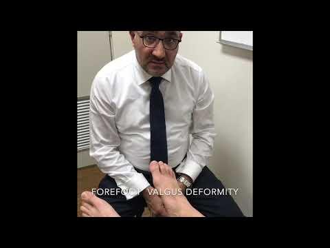 Как избавится от косточки на ноге большого пальца видео
