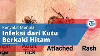 Penyakit Lyme Desease - Penyakit Menular dari Kutu