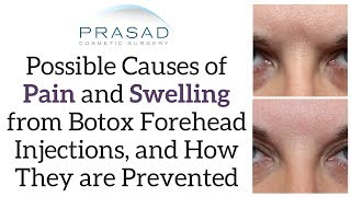 Possible Causes of Pain and Swelling after Botox® in Forehead, and How a Doctor can Avoid Them