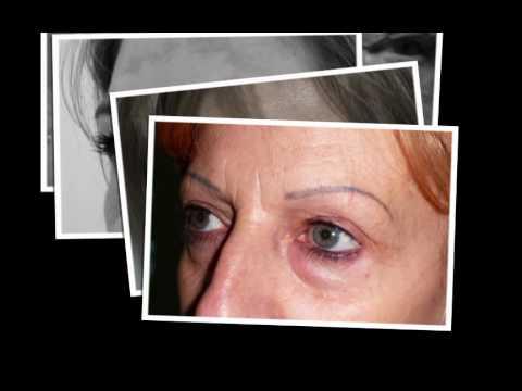 Quello che aiuta da risposte di eczema
