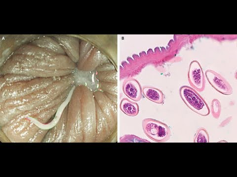 Intraductal papilloma histopathology