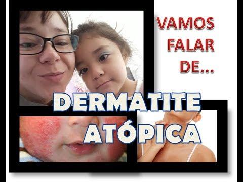 Eczema de disgidrotichesky de uma foto