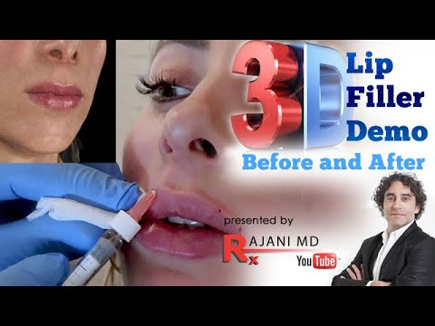 Lip Filler Bruising Juvederm Portland Oregon Video