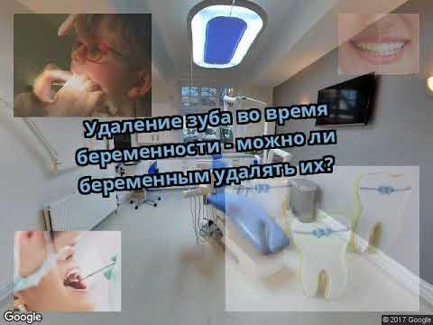 Удаление зуба во время беременности - можно ли беременным удалять их?