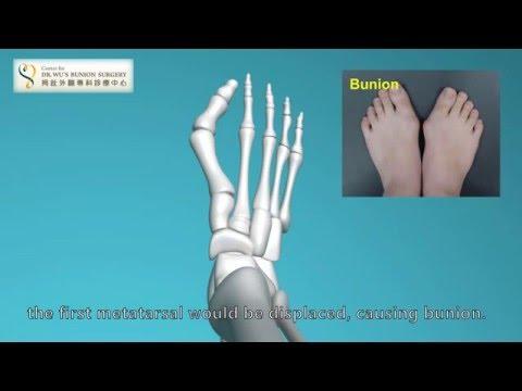 กระดูกนิ้วเท้าใหญ่เป็นภาพการรักษา