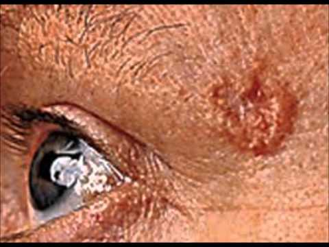 basal cell carcinoma : Basal Cell Carcinoma pictures, Symptoms, Treatments and Risk Factors