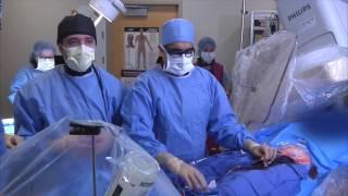 Watch a Transcatheter Aortic Valve Procedure
