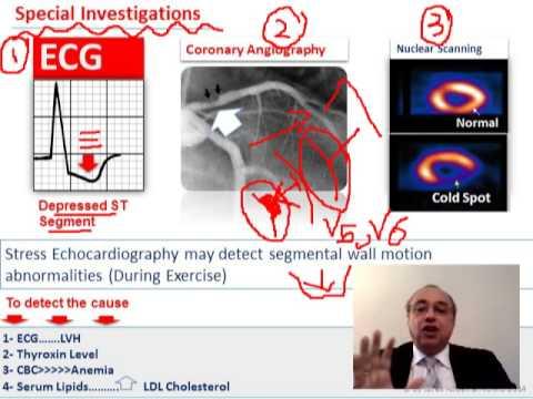 Hypertonie EKG