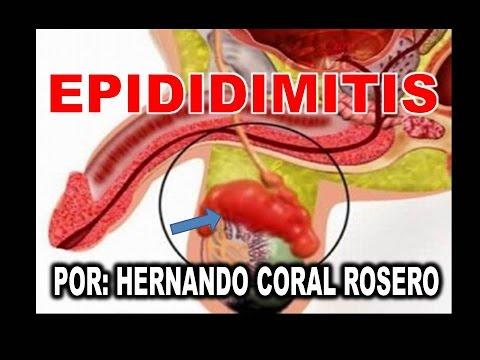 Sintomi della prostata di BPH