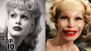 Top 10 Extreme Plastic Surgery Disasters - Part 2