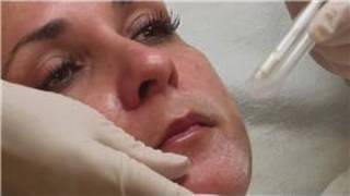 Acne Prone Skin Care : How Do I Peel Skin With Salicylic Acid