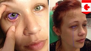 Eyeball tattoo: Model might get eye removed after eyeball tattoo goes horribly wrong - TomoNews