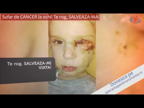 Hpv squamous cell carcinoma skin