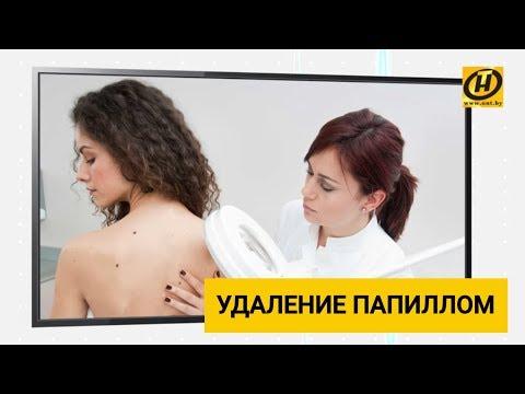 Gastric cancer herceptin
