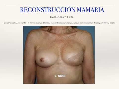 Mostrar la operación de la reducción del pecho