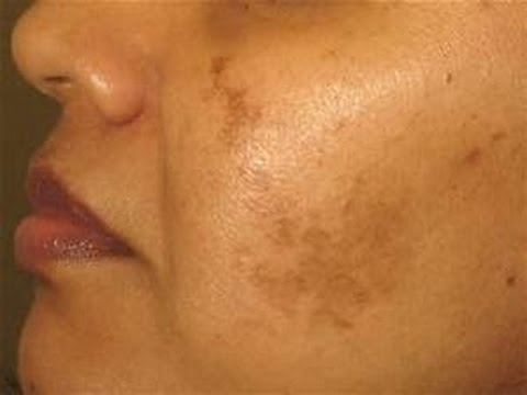 Beauty clinic dark spots