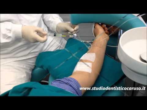 Togliere varicosity una puntura