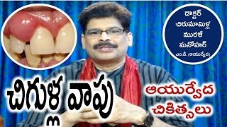 Gums Swelling, Causes and Ayurvedic Treatments in Telugu by Dr. Murali Manohar Chirumamilla, M.D.