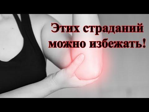 Сетка для лечения артроза