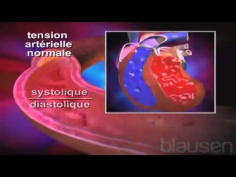 La littérature sur la tension artérielle