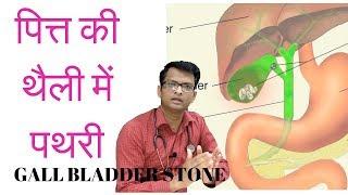 पित्त की थैली में पथरी | Gall bladder stone- symptoms, diagnosis, treatment